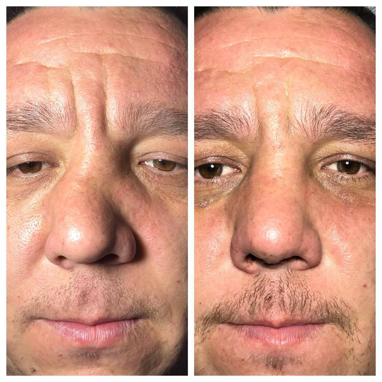 Искривление носовой перегородки – как вылечить патологию? причины возникновения и способы лечения