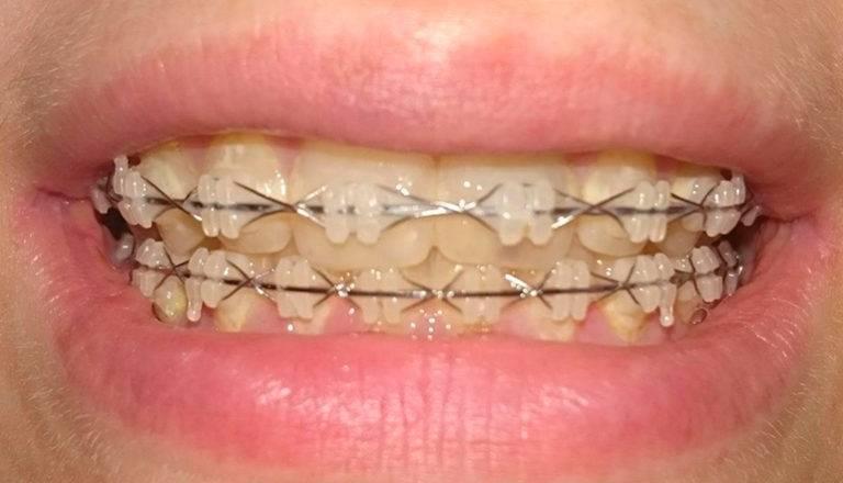 Безлигатурные и лигатурные брекеты