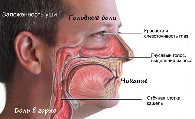 сухой ринит симптомы причины