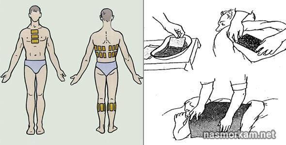 Горчичники при лечении бронхита — показания и особенности применения