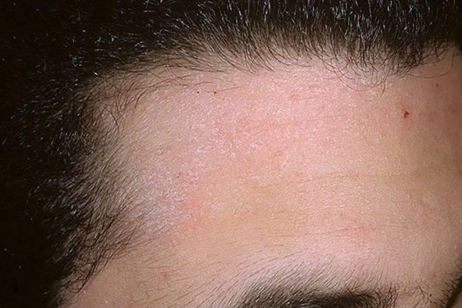Себорейный дерматит. причины, симптомы, признаки, диагностика и лечение патологии
