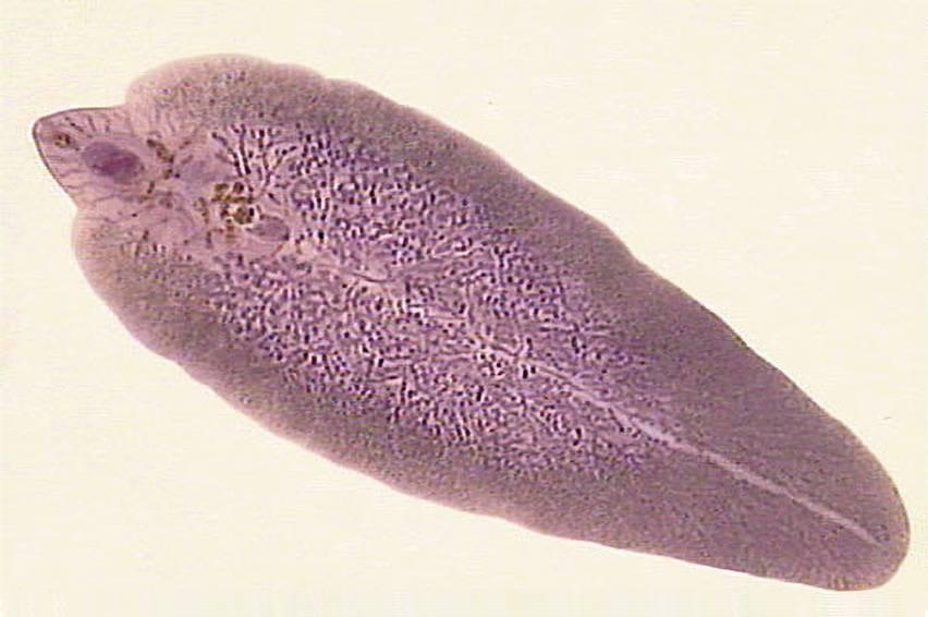 Чем опасны трематоды для человека
