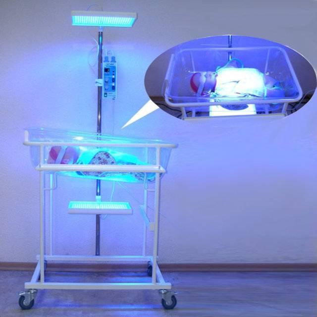 Фототерапия при желтухе у новорожденных: показания , противопоказания и курс лечения