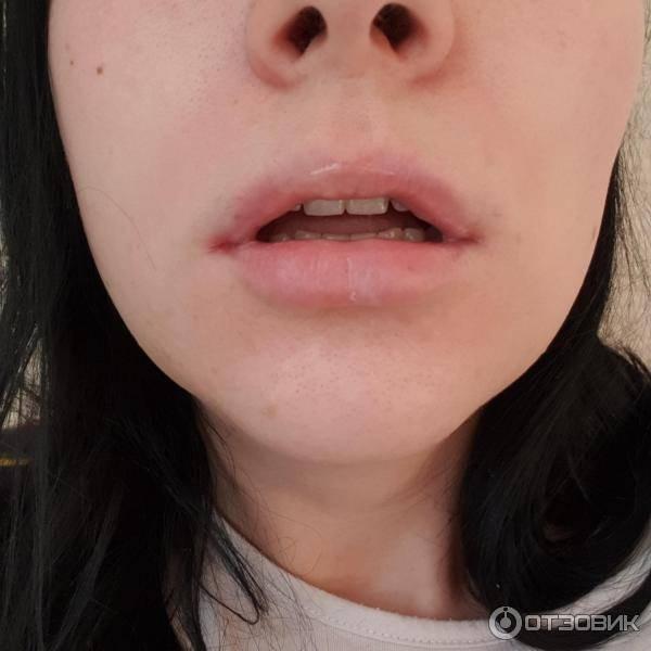 Осложнения после удаления миндалин у взрослых