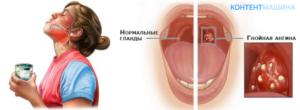 Быстрое и эффективное избавление от ангины у детей