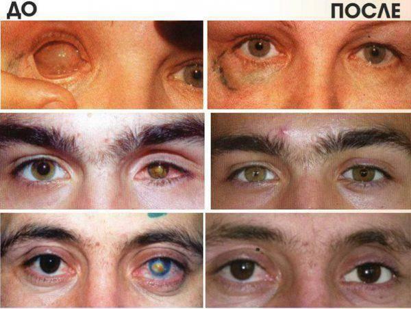 В каких случаях необходима энуклеация глазного яблока?
