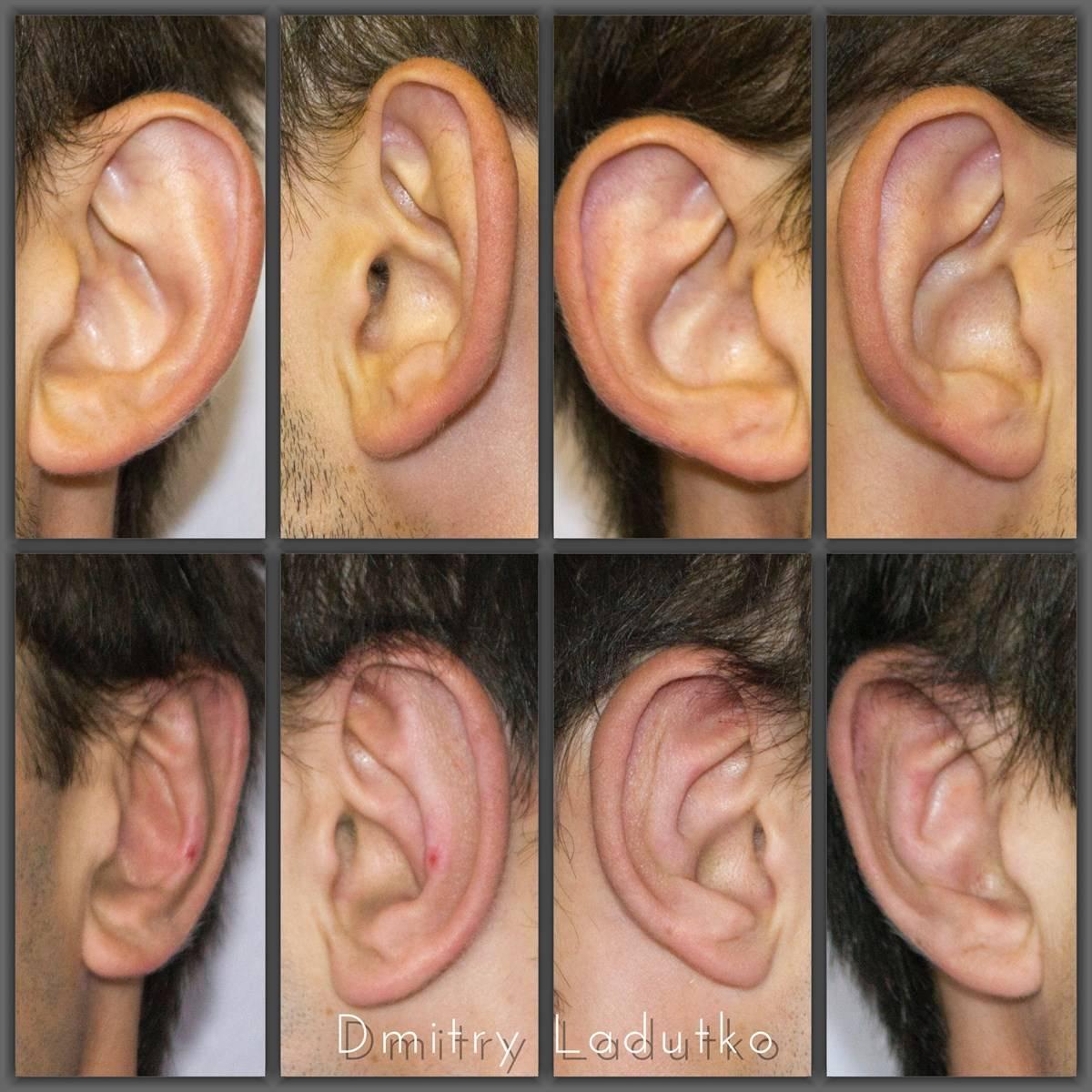 Как убрать лопоухость в домашних условиях. оттопыренные уши как избавиться от лопоухости дома