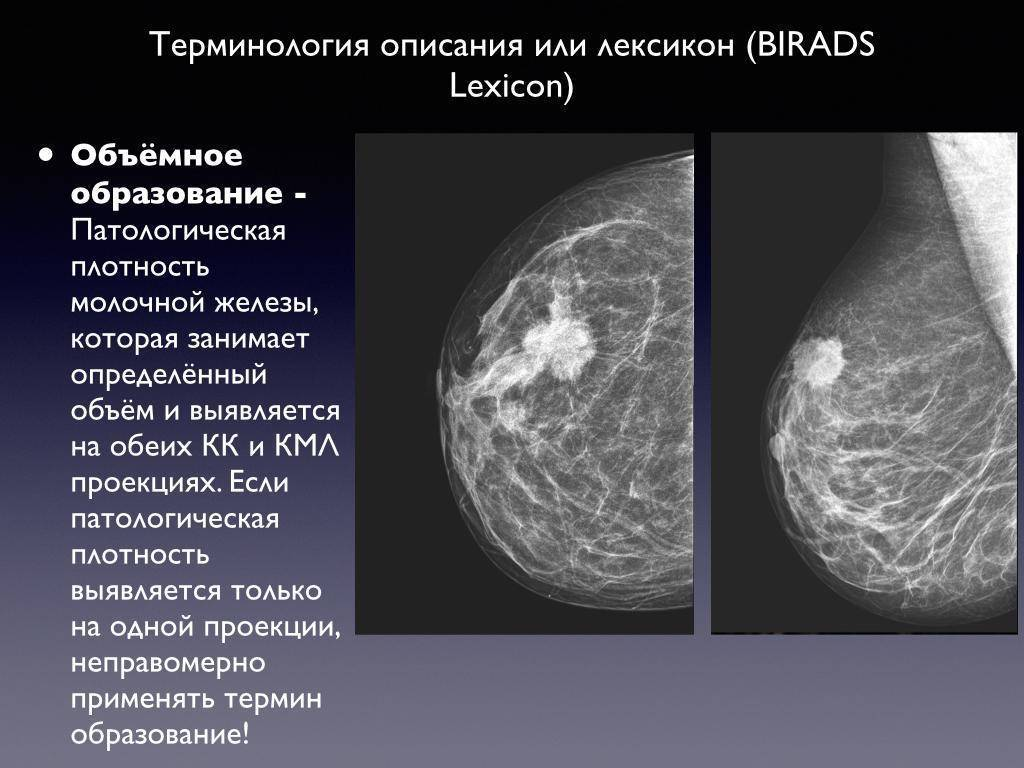Признаки появления фиброзно-жировой инволюции у женщин