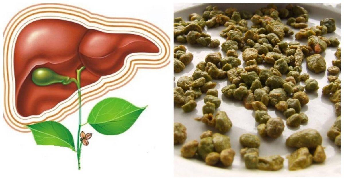 Как почистить печень от паразитов народными средствами в домашних условиях. медикаментозная чистка печени от гельминтов