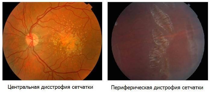 Периферическая дистрофия сетчатки глаза: пхрд и пвхрд