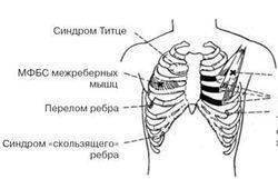Если болит под левым ребром спереди при кашле