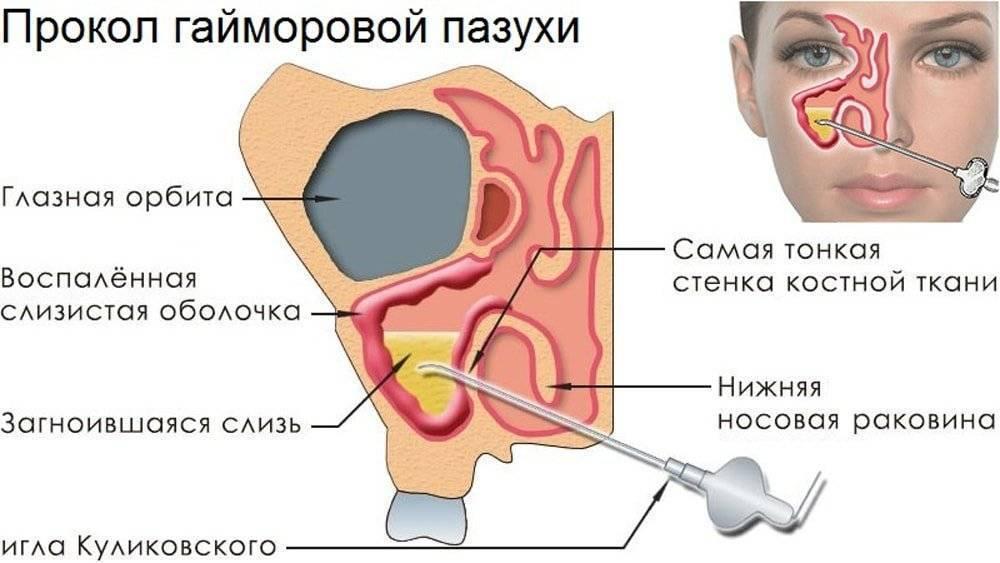 Как лечить гайморит у взрослых