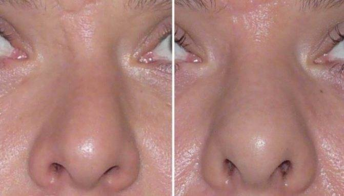 Список лучших капель для носа при насморке и их применение