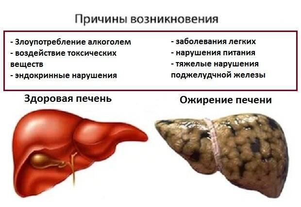 что можно есть при ожирении печени
