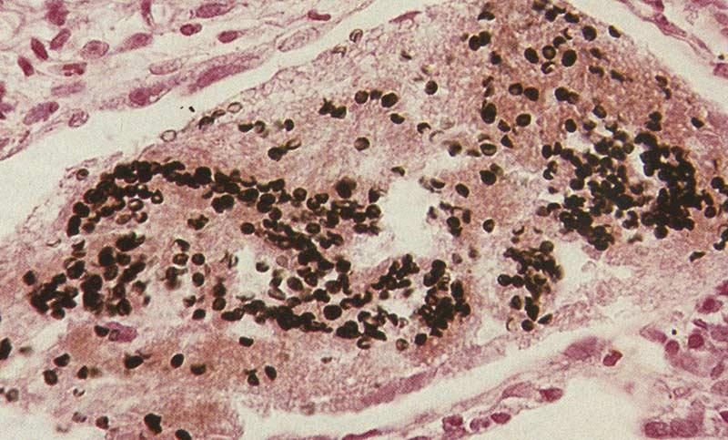 Причины и лечение пневмоцистной пневмонии у взрослых