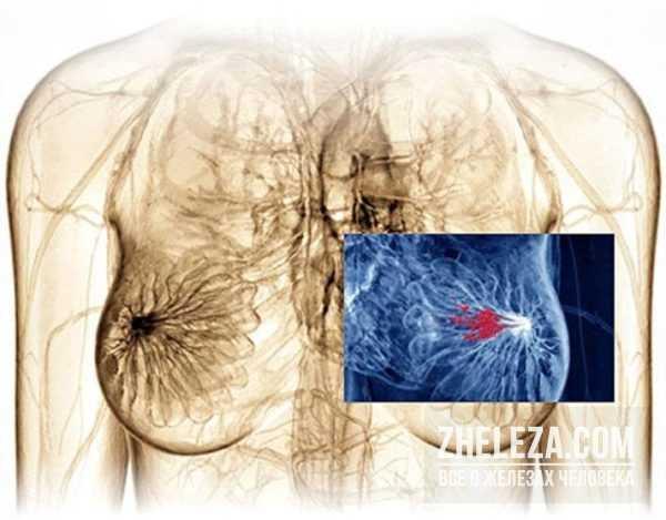 Симптомы заболеваний, диагностика, коррекция и лечение молочных желез — molzheleza.ru. жжение в груди у женщин - причины, почему печет и горит в левой или правой молочной железе