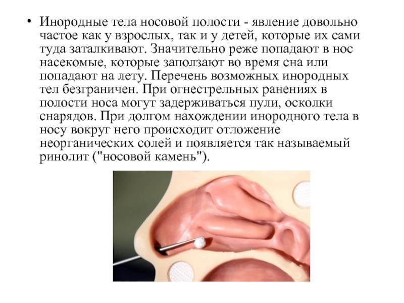 Инородное тело в носу у ребенка и возможные последствия