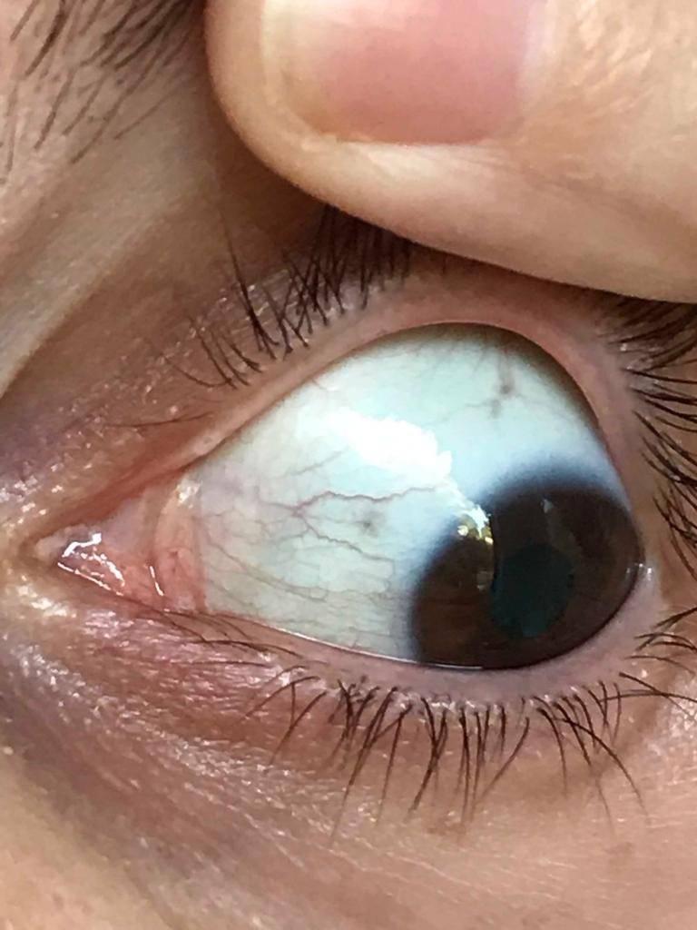 темные пятна на белке глаза
