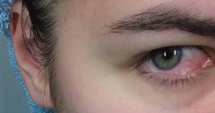 Травмы глаза: виды, возможные осложнения, первая помощь