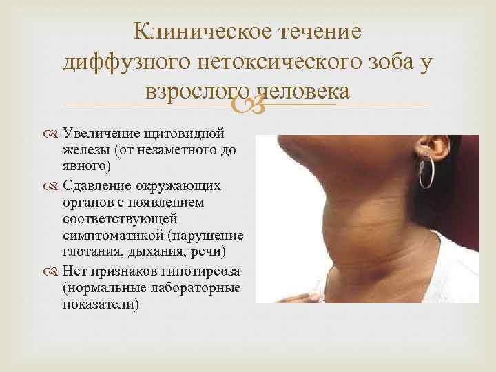 Зоб щитовидной железы (эндемический, узловой, диффузный, коллоидный, токсический) – симптомы, причины, лечение