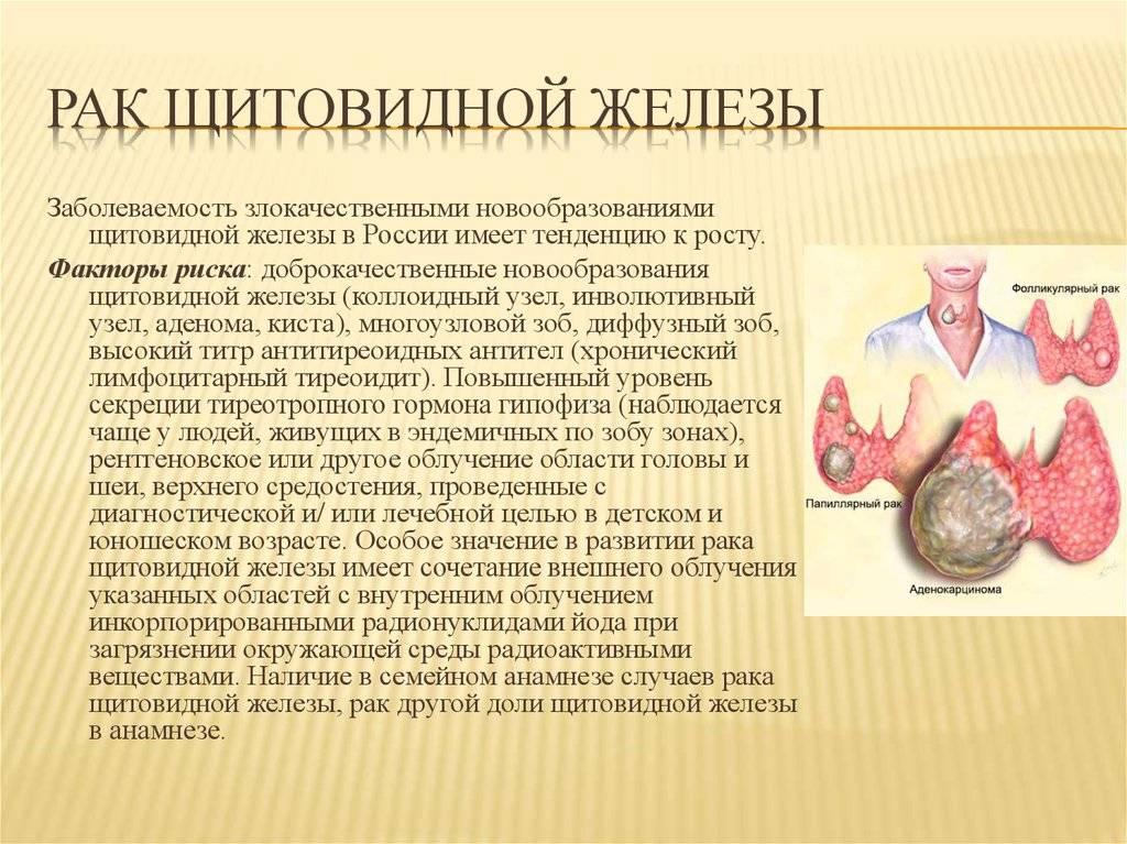 Продолжительность жизни при папиллярном раке щитовидной железы: железы, жизни, папиллярном, продолжительность, раке, щитовидной
