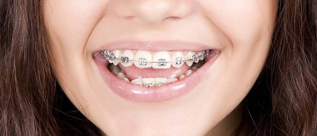 Скобы на зубы лечение