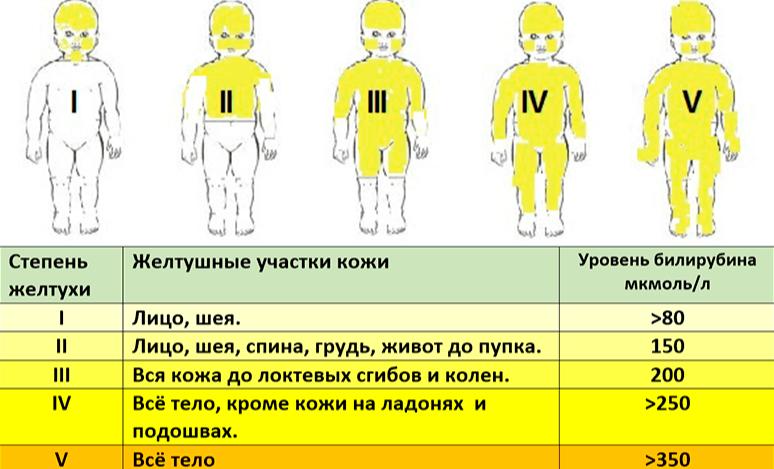 Заразна ли желтуха для окружающих? опасные виды желтух, пути передачи и профилактика заражения