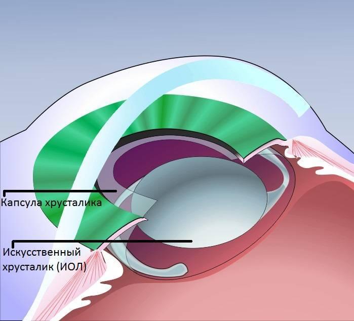 Вторичная катаракта.  удаление вторичной катаракты лечение: симптомы, причины
