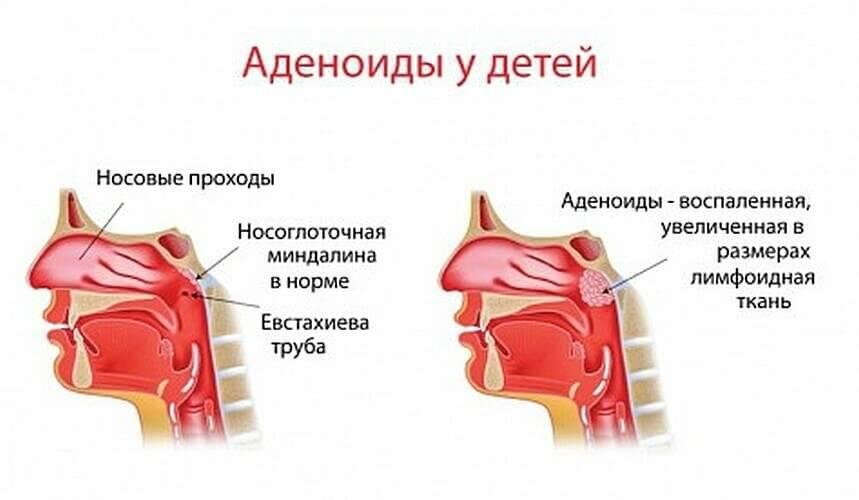 Как понять, что у грудничка аденоиды? симптомы заболевания и методы лечения увеличенных миндалин