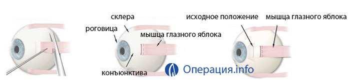 Операция при косоглазии: методы хирургического лечения, показания, результат