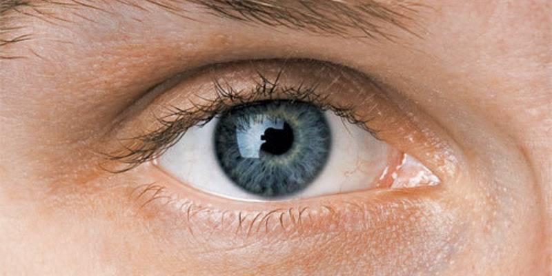 Причины миоза (суженных зрачков)