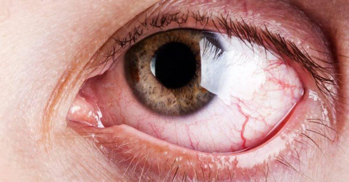 Покраснели и болят глаза от линз что делать