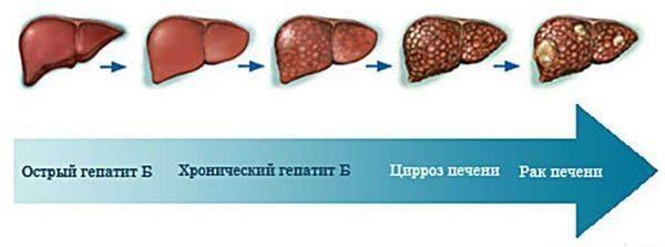 рак печени продолжительность жизни
