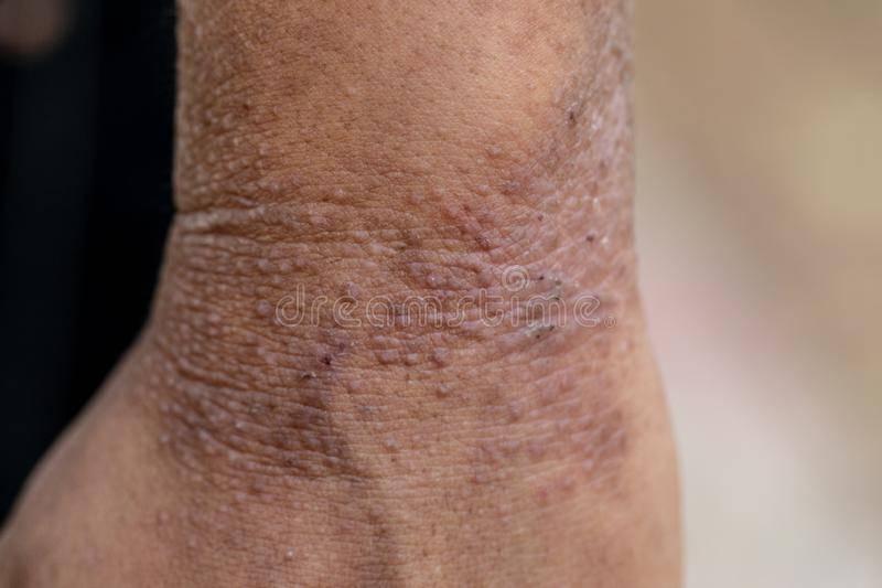 Атопический дерматит — википедия. что такое атопический дерматит