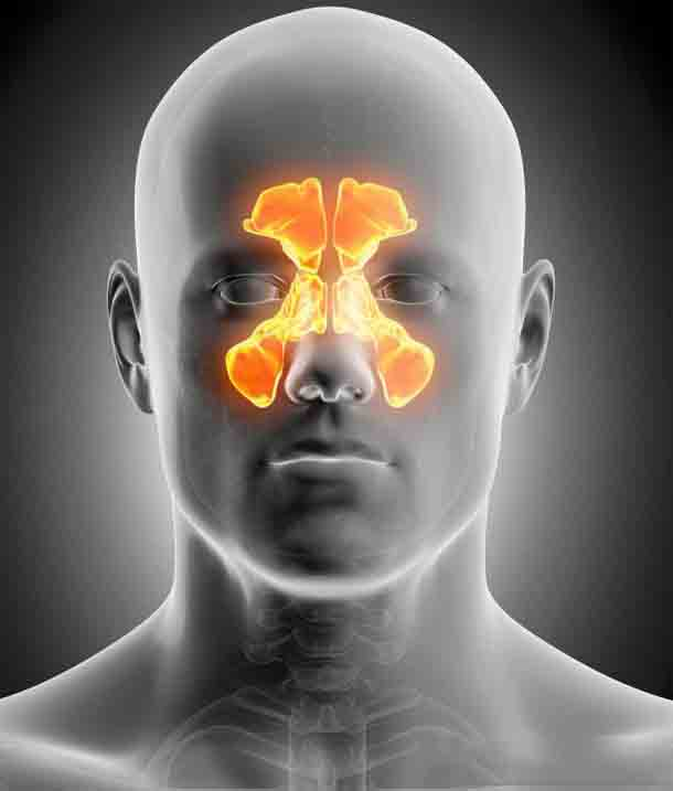 Что делать при болях пазухах носа без насморка, как лечить?