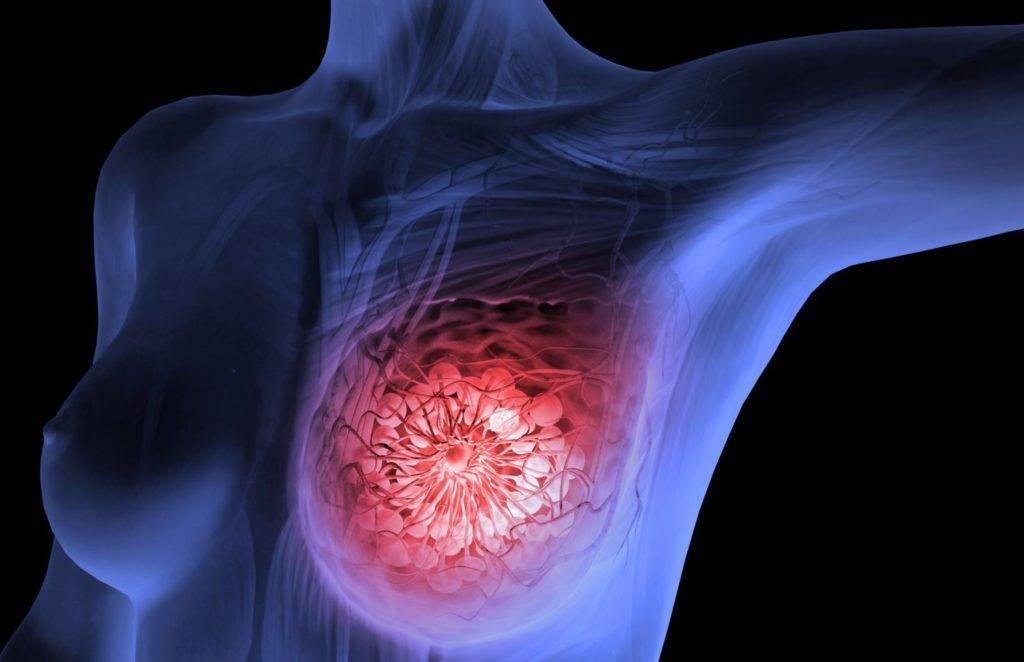 как быстро растет опухоль молочной железы