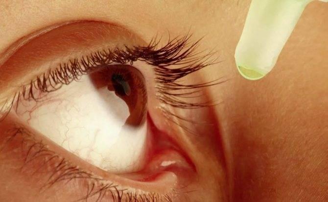 ячмень на глазу лечение при беременности