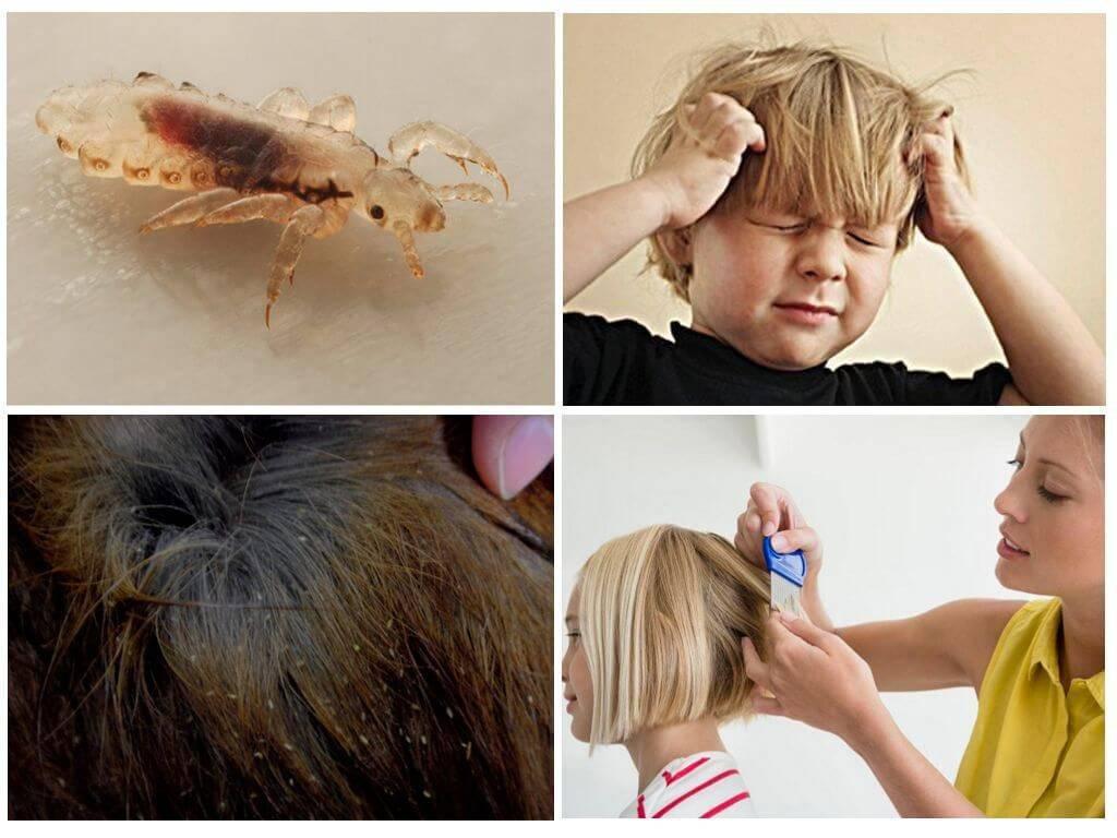 У ребенка завелись вши: что делать, чтобы от них избавиться?