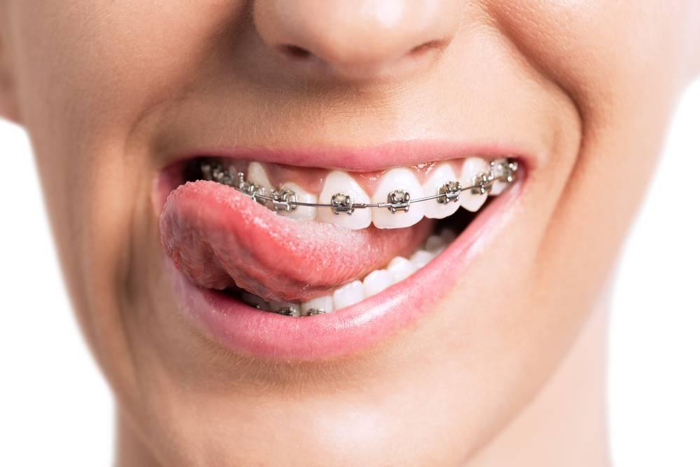 Ортодонтические методы лечения — большая медицинская энциклопедия