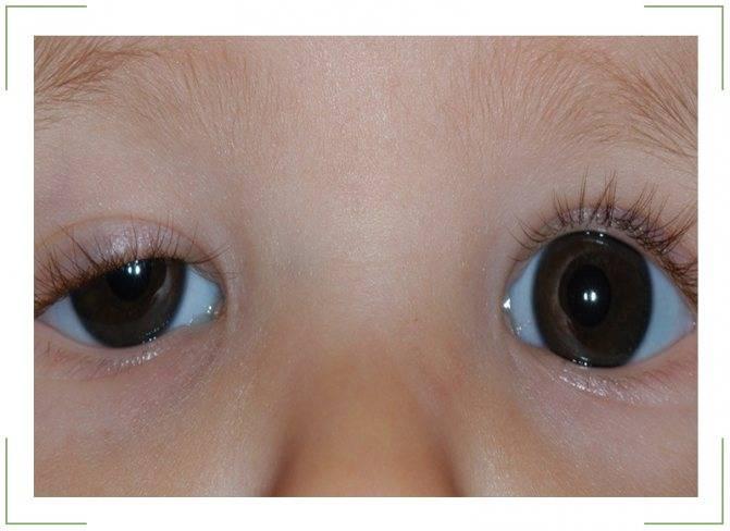 когда фокусируется зрение у новорожденных