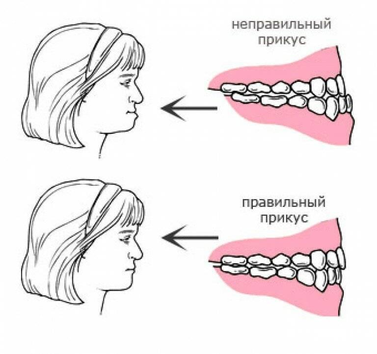Виды правильного и неправильного прикуса зубов у человека