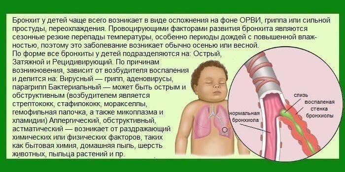 Трахеит у детей – что такое воспаление трахеи, как вылечить трахеит?