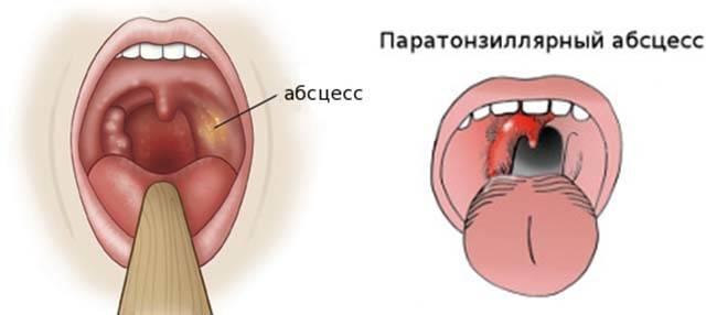 Как сделать красное горло за 5 минут. лайфхак как сделать так чтобы заболело горло — youtube