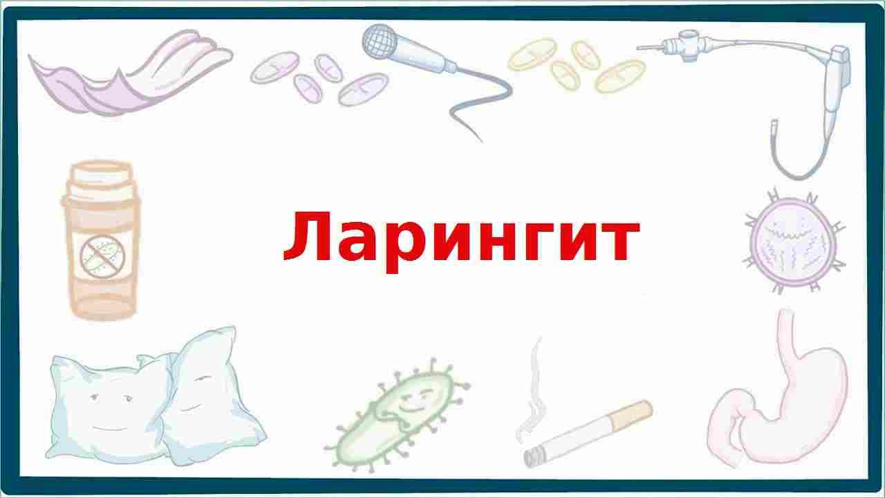 комаровский ларингит