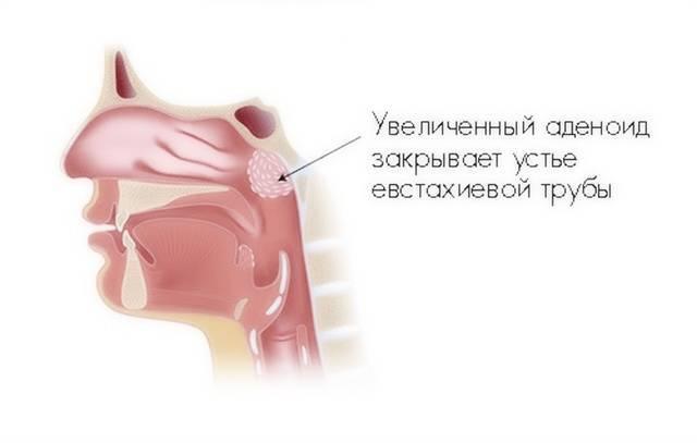 аденоиды у грудничка симптомы