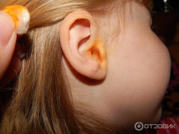 Неприятный запах из ушей
