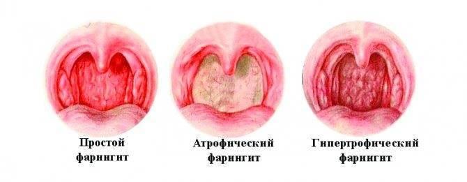 Какие бывают заболевания горла у детей и взрослых