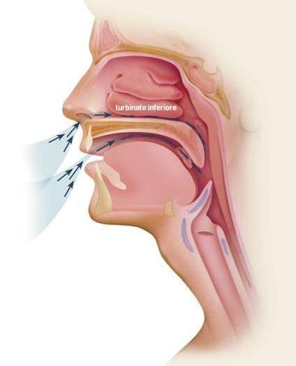 Пахнет из носа гноем как лечить
