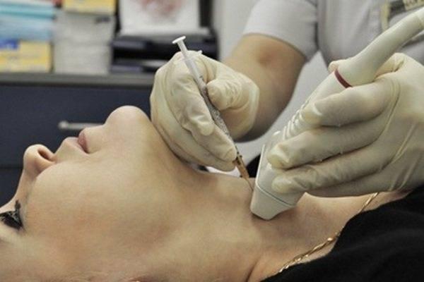 узловая гиперплазия щитовидной железы