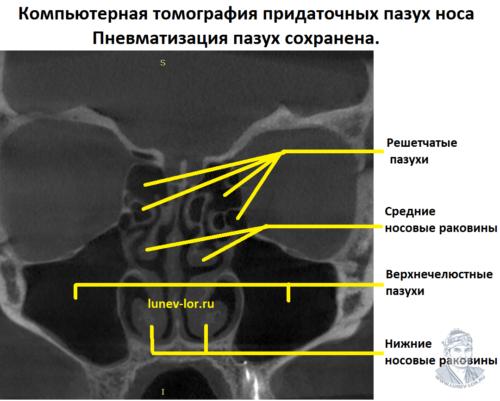 Что такое нарушение пневматизации верхнечелюстных пазух носа